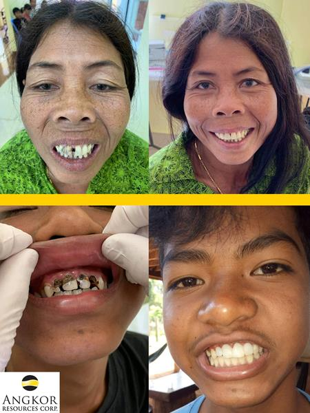 angkor resources dental