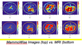 MammoWise Images Vs MRI